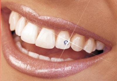 bijou-dent-strass-1.jpg