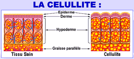 cellulite.png