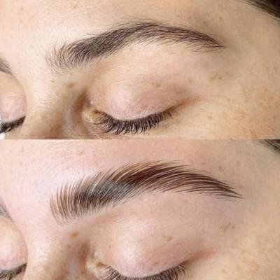 brow lift orleans