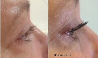 Rehaussement mascara semipermanent bosourire
