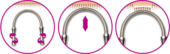 schema-epilation-epil-spring-1.jpeg