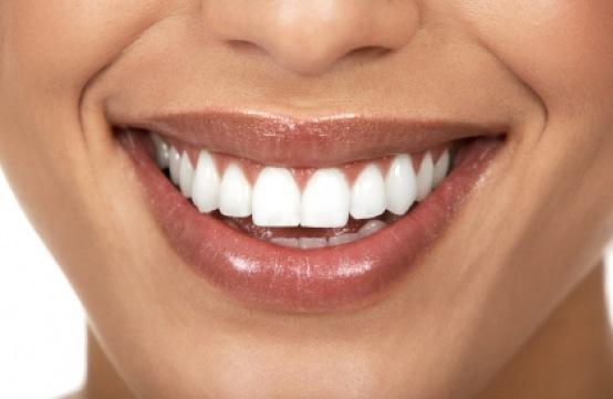 sourire-femme-sans-poil-lc3a8vre-supc3a9rieure.jpeg