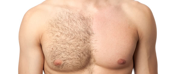Waxing hair removal for men